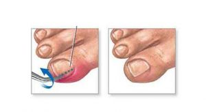 Toenail Problems - Joan Koewler, DPM